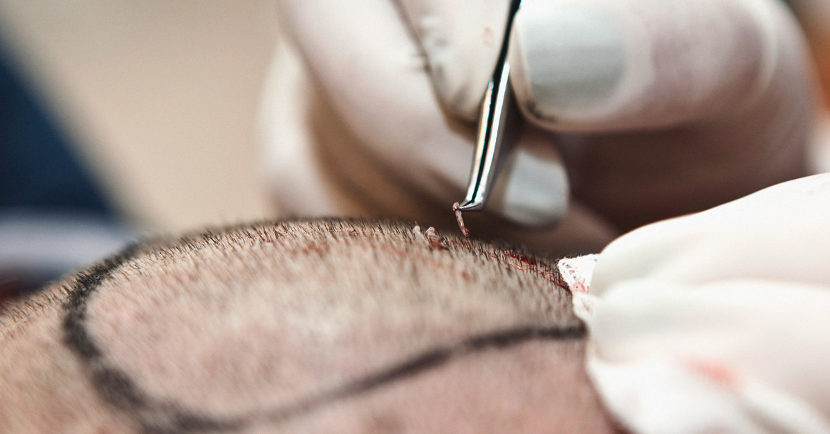 Does Hair Transplant Work Effectiveness Side Effects And Photos
