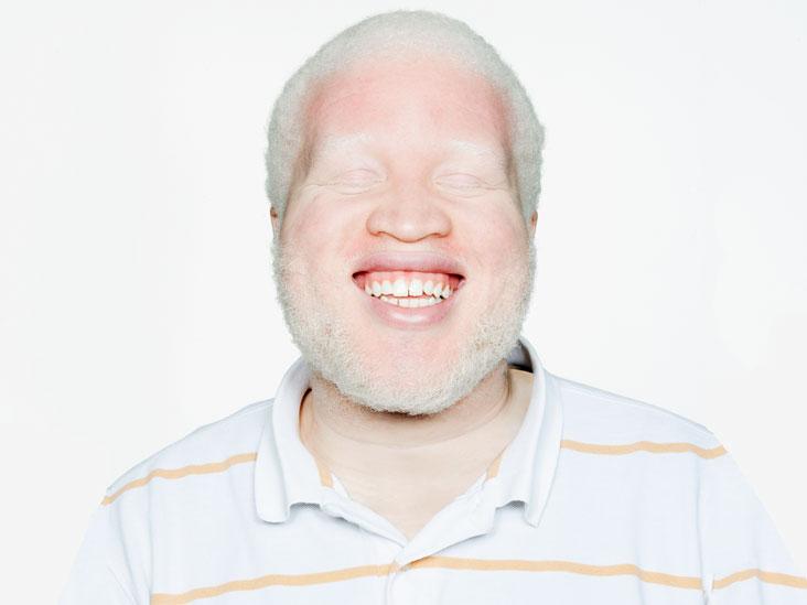 Albinism Causes Types Amp Symptoms