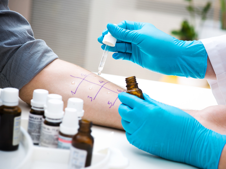 Allergy Testing Purpose Procedure And Results
