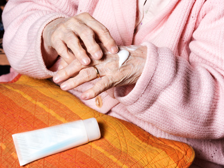 Image result for Arthritis Creams - How Effective Are They?