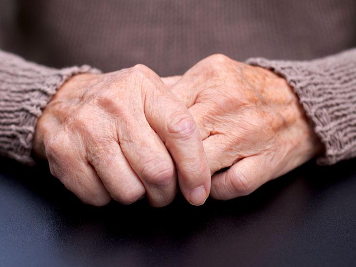 térdkészítmények arthroso-arthritis