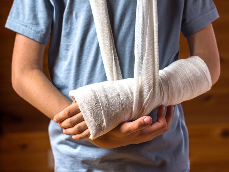 Bone Graft: Purpose, Procedure, and Risks