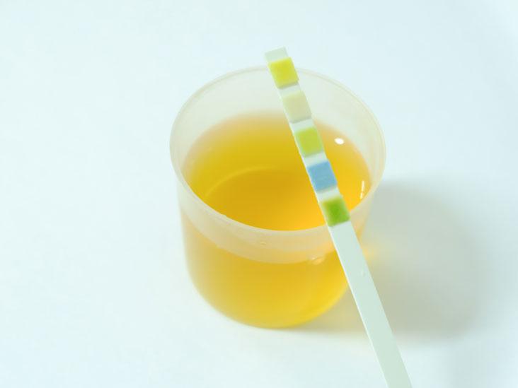 Urine Calcium Level Tests Purpose Procedure And Results