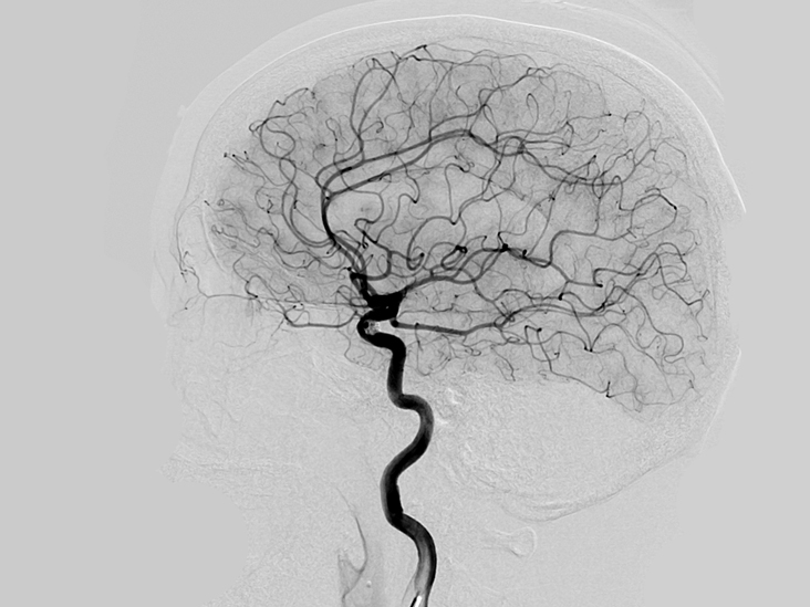 What Is a Cerebral Angiography?