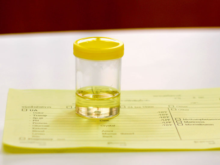 Cortisol Urine Test: Purpose, Types, and Results