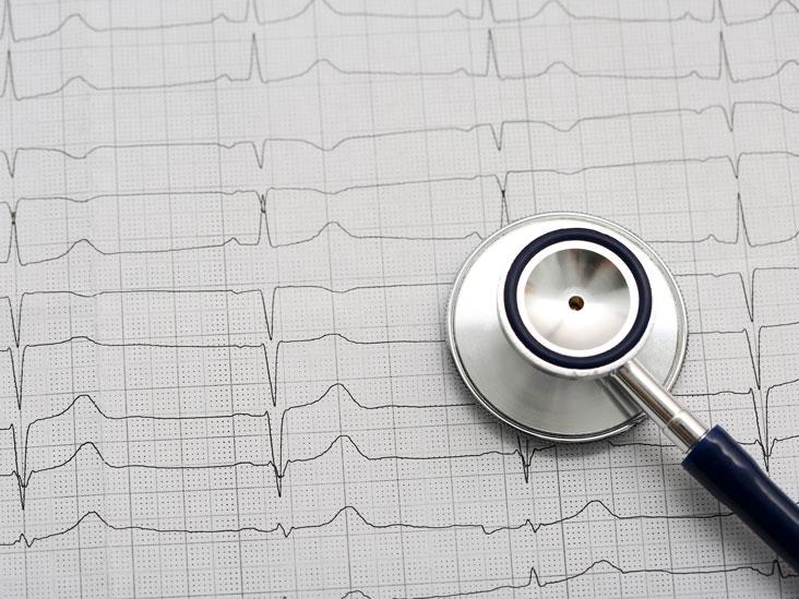 Thallium Stress Test Purpose Procedure And Risks