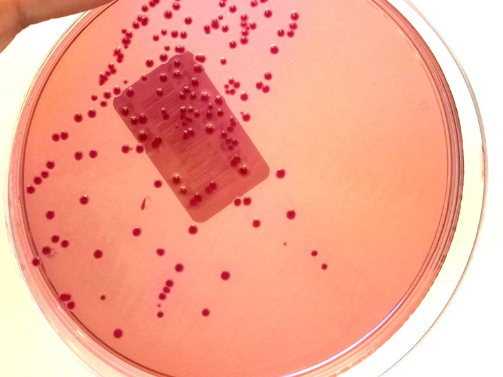 Gram Stain Definition And Patient Education