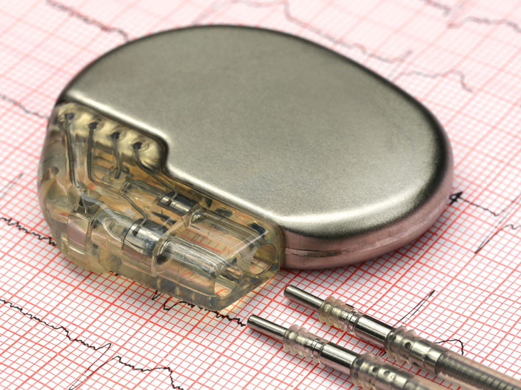 heart pacemaker purpose procedure amp risks