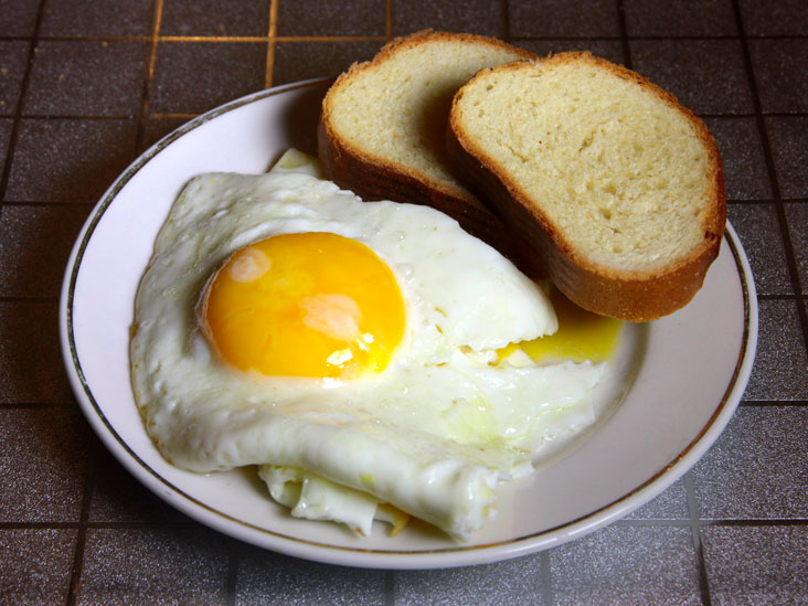 High Blood Cholesterol And Triglycerides Lipid Disorder