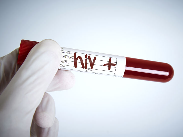 Detecting HIV: Seroconversion Time Is Important