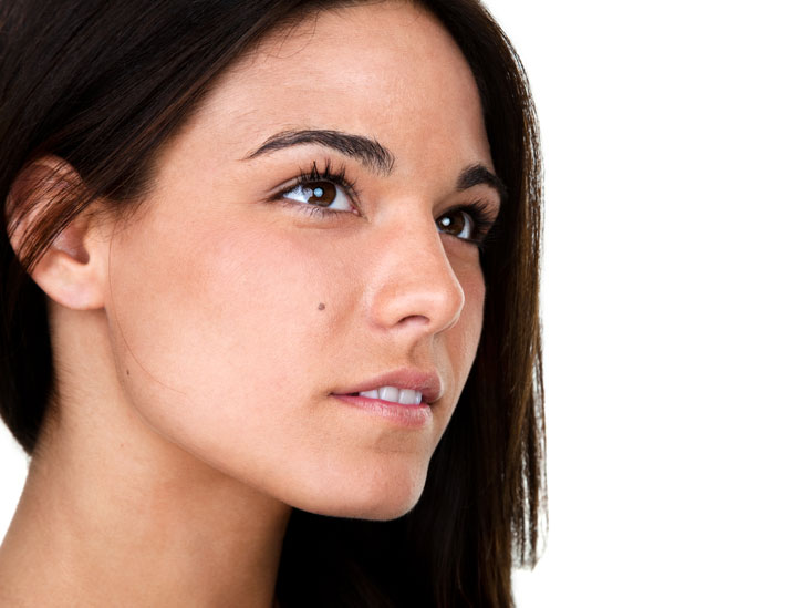 Melasma: Symptoms, Diagnosis, and Treatments