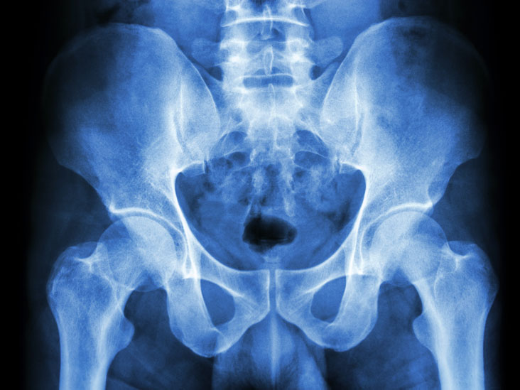 X Ray Of The Pelvis Purpose Procedure And Risks