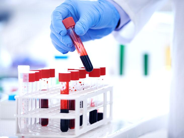 Low serum protein in pregnancy