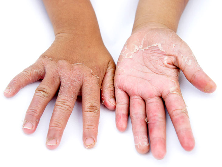 Scaling Skin: Pictures, Causes, Diagnosis, and Treatment