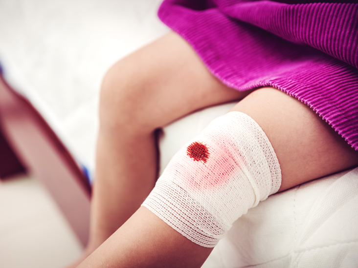 blood clots signs symptoms risks and more