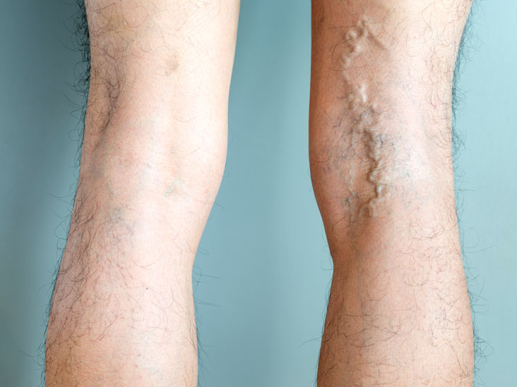 varicose vein stripping