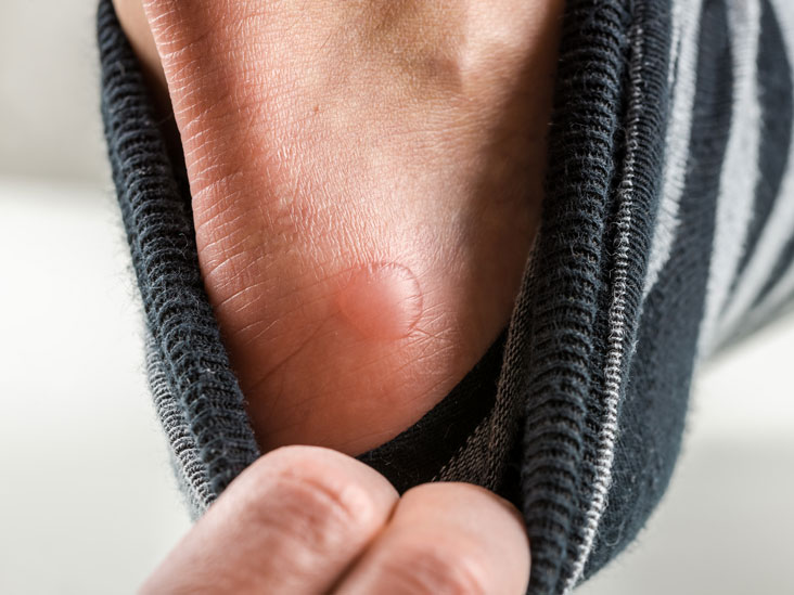 Vesicles: Causes, Symptoms, and Diagnosis