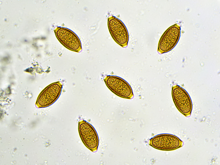 Worms In Cat Urine