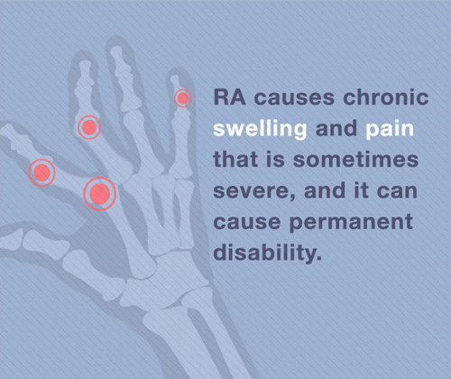 RA Statistics