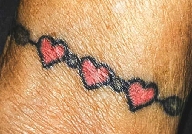 Skin Cancer Tattoos
