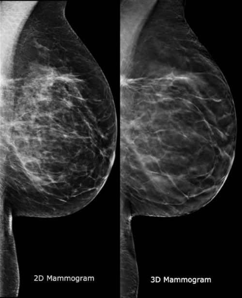 Patient and Physician Say 3D Mammography Is the Wave of the Future