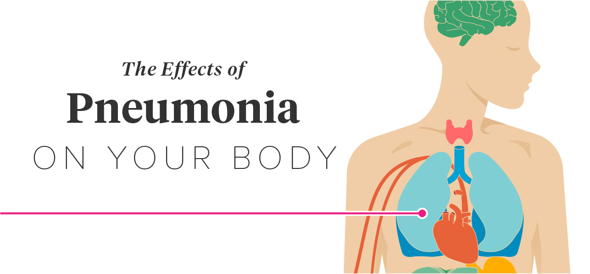 The Effects Of Pneumonia On The Body
