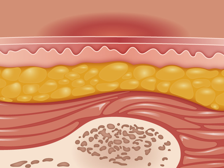 Stages Of Pressure Ulcers Sore Stages And Treatments