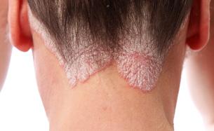 Psoriasis Pictures: 57 Photos, Treatments, Symptoms