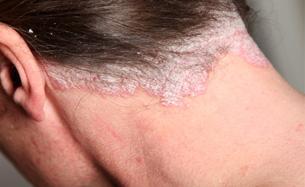 psoriasis pictures: 57 photos, treatments, symptoms, Skeleton