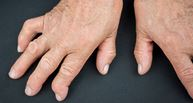 hands of someone with advanced rheumatoid arthritis