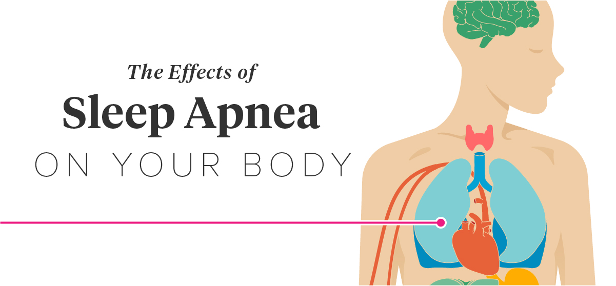 The Effects of Sleep Apnea on the Body