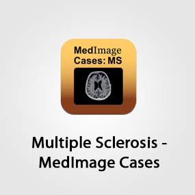 Multiple Sclerosis - MedImage Cases