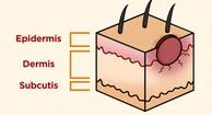 skin-cancer-stats
