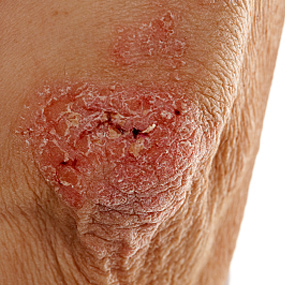 A patch of psoriasis