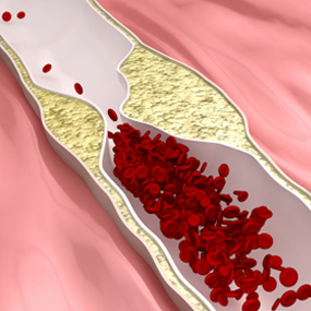 Artery with red blood cells and a blockage illustration