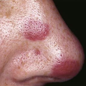 hiv rash: what does it look like and how is it treated?, Skeleton