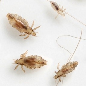 Head Lice Where Do They Come From  Healthline