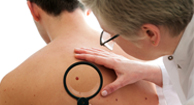 doctor inspecting mole on man's back