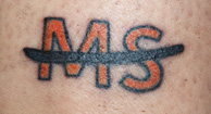 A multiple sclerosis-related tattoo.