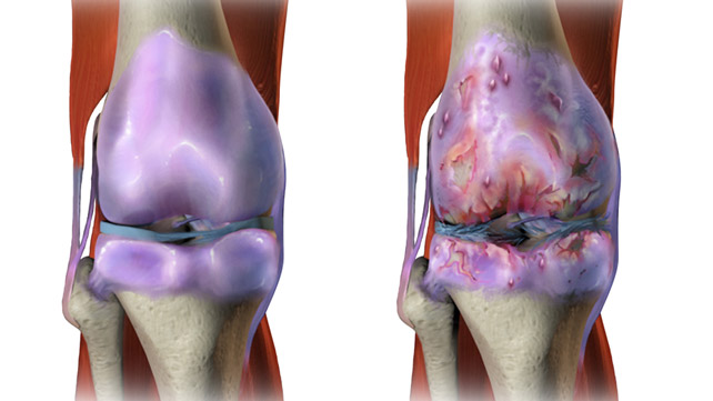 Osteoarthritis Pictures