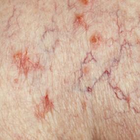 psoriasis home treatment