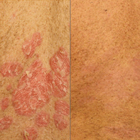 side by side comparison of skin with and without psoriasis