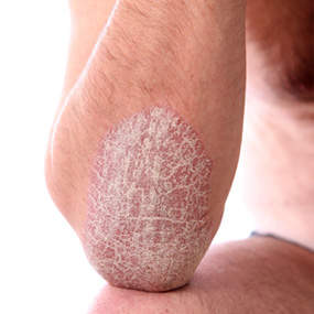elbow and arm with plaque psoriasis