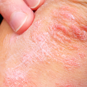 skin with plaque psoriasis