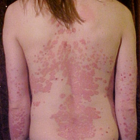 human back covered in plaque psoriasis