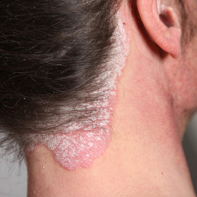 scalp neck and ear with psoriasis