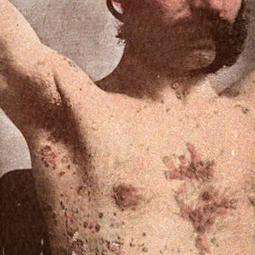 Man with psoriasis on torso