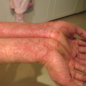 hands and wrists with eczema