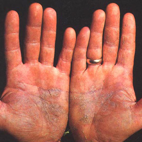 hands with psoriasis rash on palms