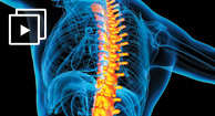 Treatments for Back Pain Caused by Rheumatoid Arthritis